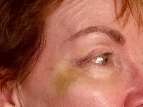 Botox Gone Bad